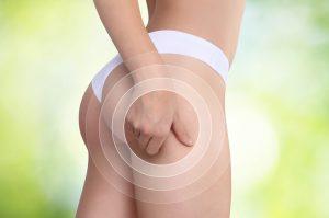 Jak stosujemy liposukcję