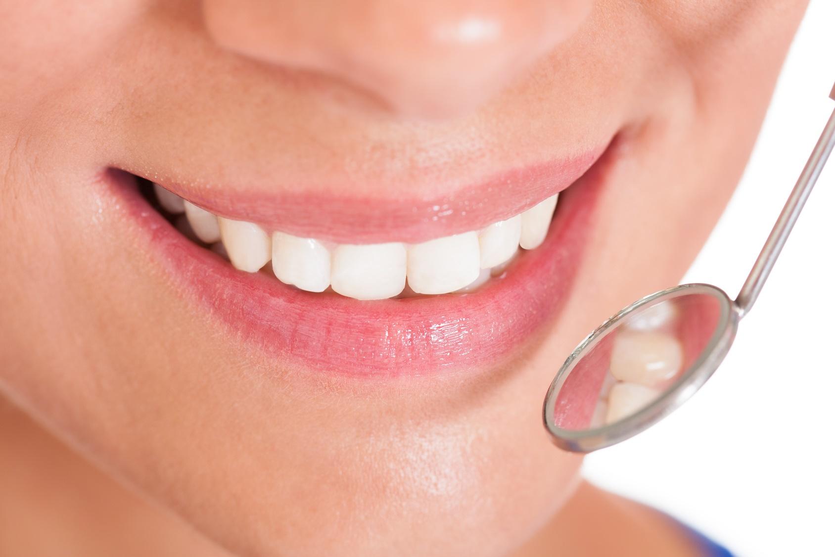 Implanty stomatologiczne: jak o nie dbać?