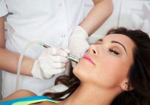 Laser do usuwania zmian skórnych