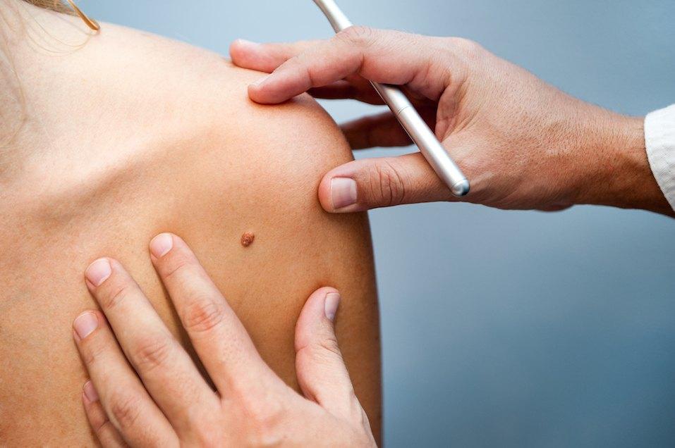 Usuwanie zmian skórnych metodą krioterapii