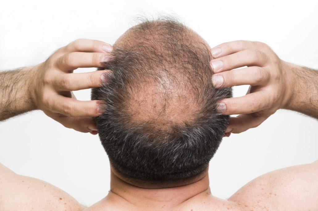 Mikropigmentacja i tatuaż skóry głowy – czy to jedno i to samo?