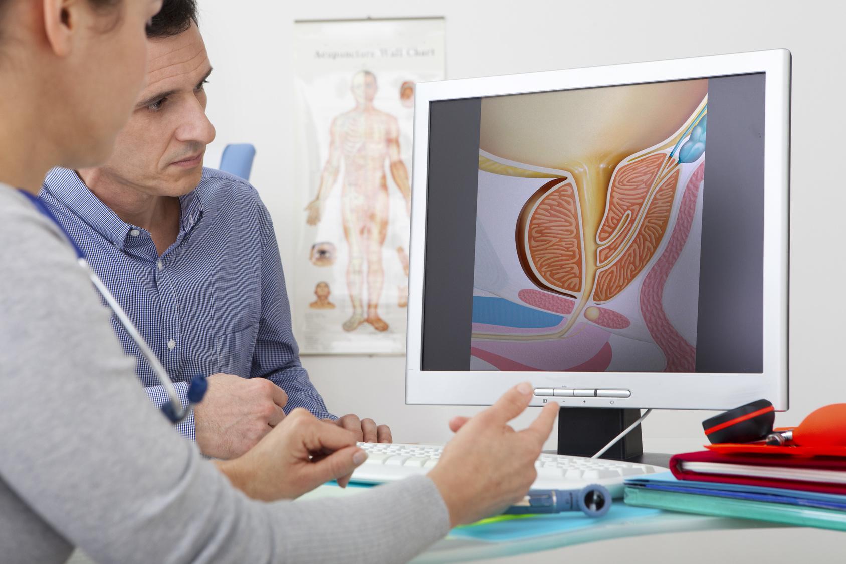 Leczenie przerostu stercza techniką embolizacji – co to za zabieg?