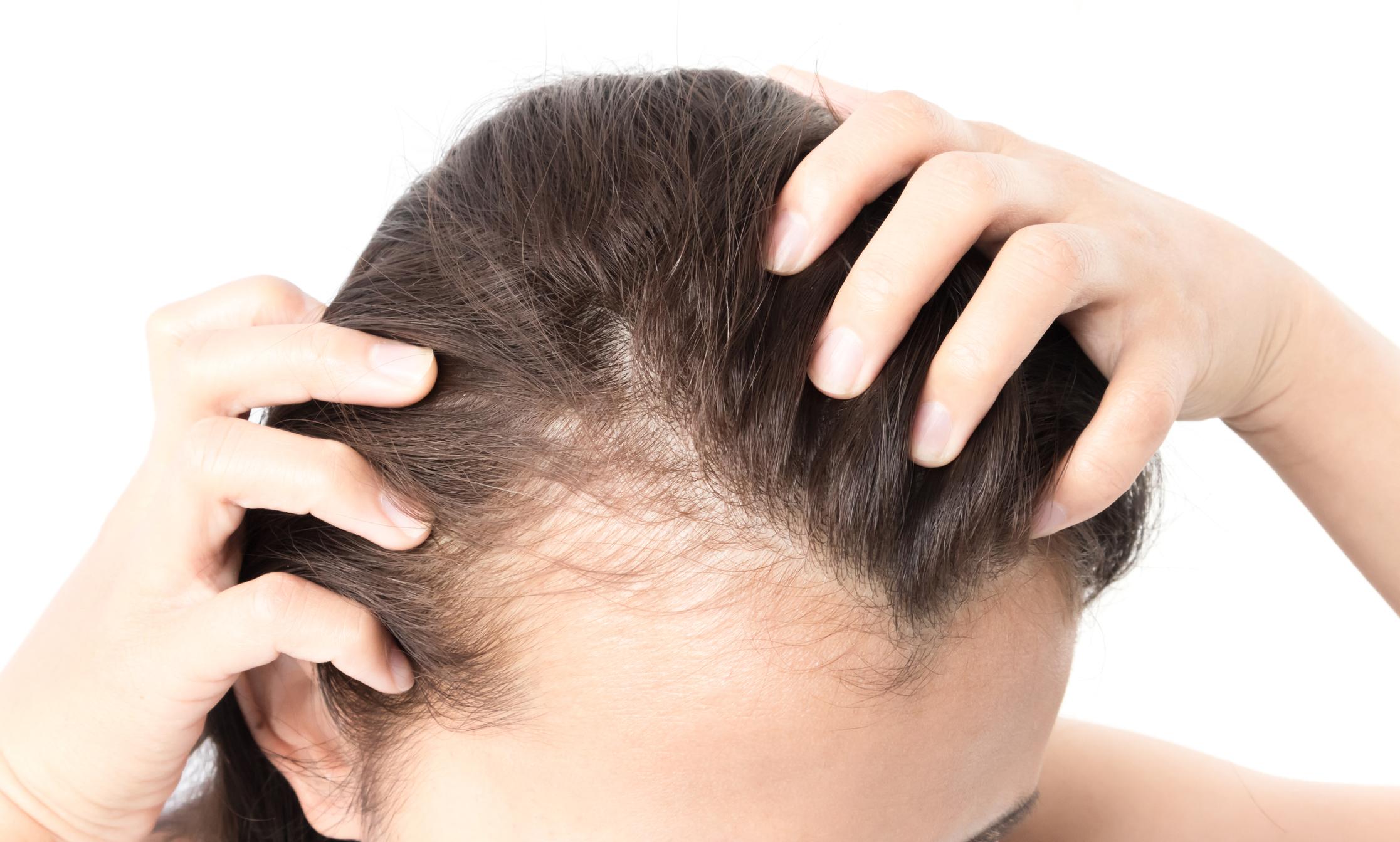 Jak pielęgnować skórę głowy po mikropigmentacji?